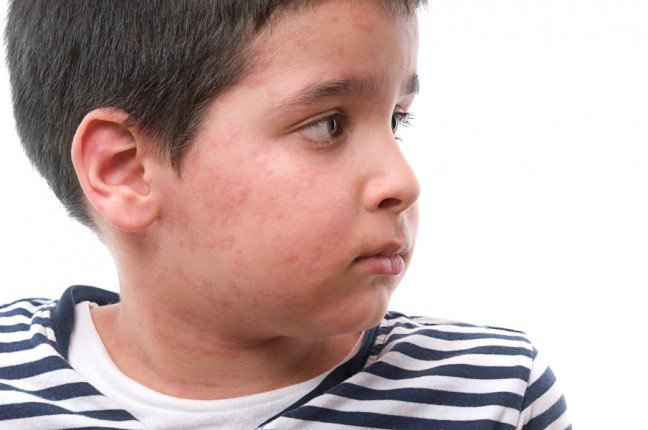 12. Co to jest?Masz problem z wysypką, obrzękiem czy guzkiem na skórze dziecka? Choroby, alergie, gorąco czy zimno mogą być przyczynązmian skórnych dziecka. Większość z nich nie stanowi zagrożenia, a ich leczenie jest proste. Sprawdź, jak rozpoznać tenajpowszechniejsze i oczywiście skonsultuj się z lekarzem, aby się upewnić, że dziecko otrzyma właściwe leczenie.