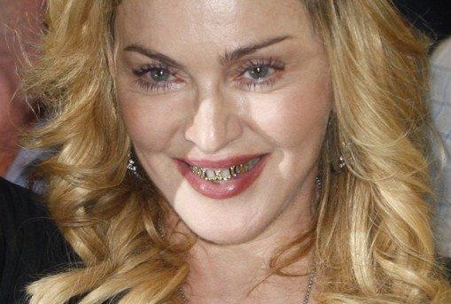 Niebezpiecznie Modne Zęby Kafeteriapl