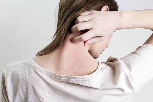 Jak rozpoznać problemy skórne w czasie nietolerancji pokarmowej?