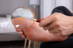 Kurzajka na stopie może być mylona ze zwykłym pęcherzem.