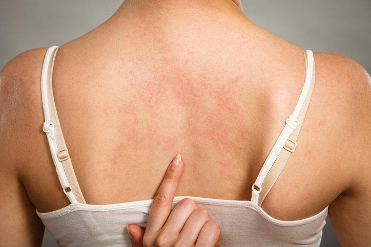 Zapalenie mieszków włosowych charakteryzuje się swędzącymi krostkami i wysypką.
