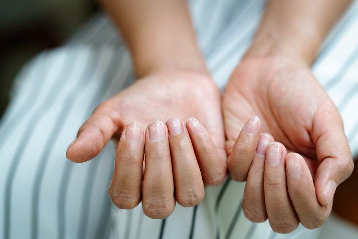 Białe plamki na paznokciach nie zawsze oznaczają poważną chorobę.