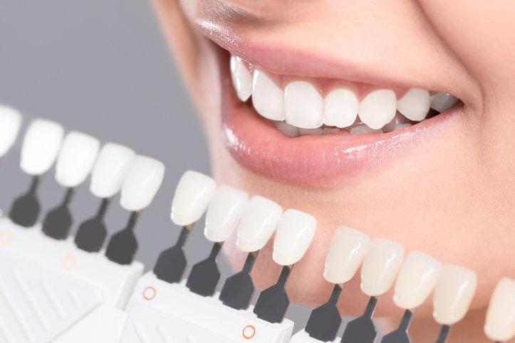 Wybielanie zębów w domu jest równie skuteczne, jak zabieg stomatologiczny.