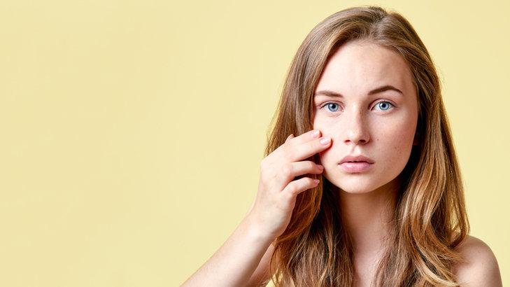 Przebarwienia na twarzy mogą być wywołane różnymi czynnikami.