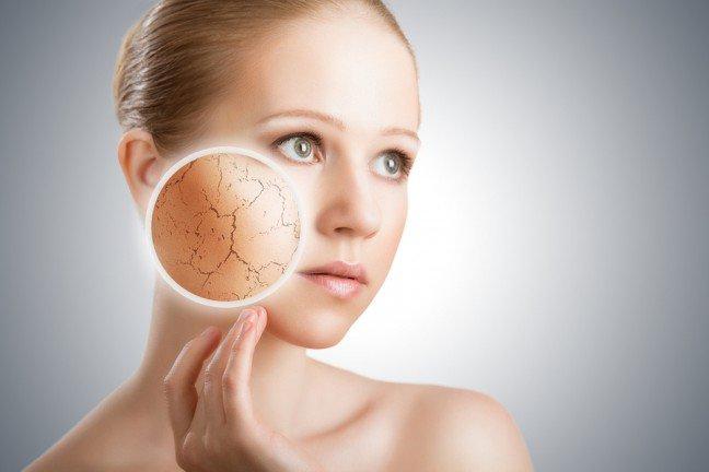 10. Charakterystyczne cechy skóry suchejSkóra sucha jest szorstka w dotyku, może mieć nierównomierny koloryt, a na jej powierzchnimogą być widoczne rozszerzone naczynka krwionośne. Źle reaguje ona na działanieczynników zewnętrznych, takich jak promieniowanie UV, twarda woda oraz mróz. Zewzględu na niedostateczną produkcję łoju skórnego, cera sucha często sprawia wrażenieściągniętej.