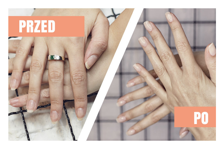 Podstawa To Baza Sekret Perfekcyjnego Manicure Kafeteriapl